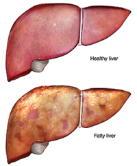 Healthy-vs-Fatty-Liver-1